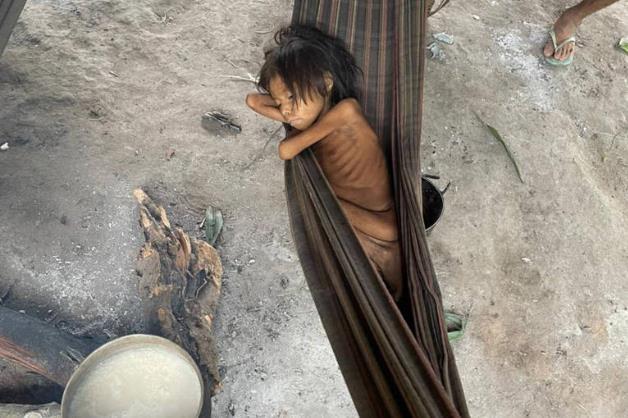 공공보건 열악·영양부족에…아마존 최대 원주민 부족 생존 위기
